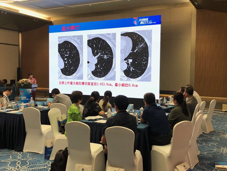 """我院专家团在""""中国肺癌MDT百城行""""活动上作专题交流"""